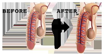 tips memperbesar dan memperpanjang alat vital secara alami